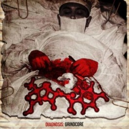 "Amoclen ""Diagnosis:Grindcore""  CD"
